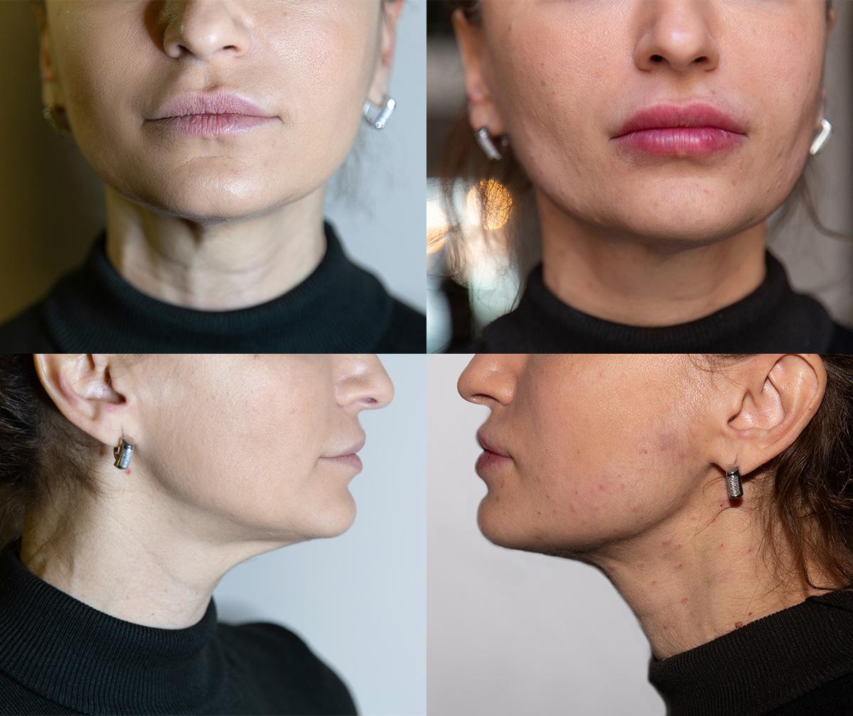 Ін'єкції краси: робимо губи й підтягуємо овал обличчя