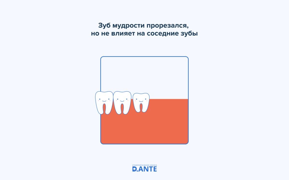 Самые непредсказуемые зубы — зубы мудрости
