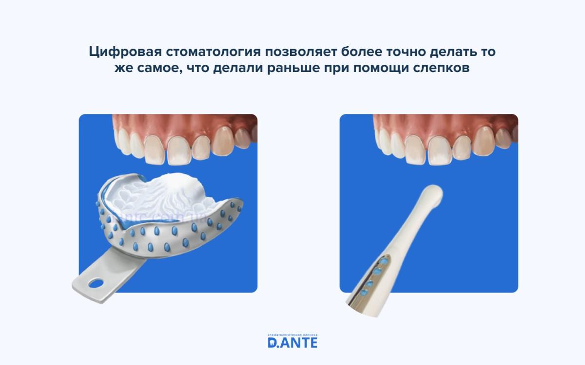 Цифровая стоматология: что это такое и кому это нужно