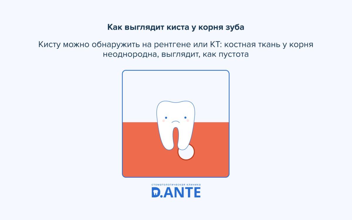 Киста зуба: от небольшого воспаления до перелома челюсти