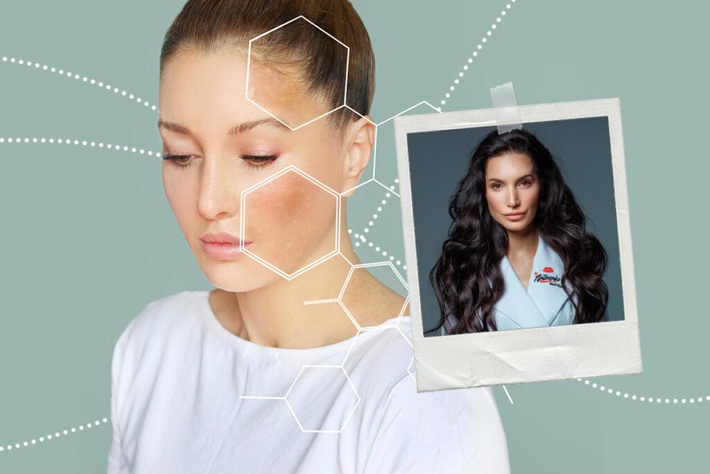 Пигментные пятна на лице: какие бывают и как убрать