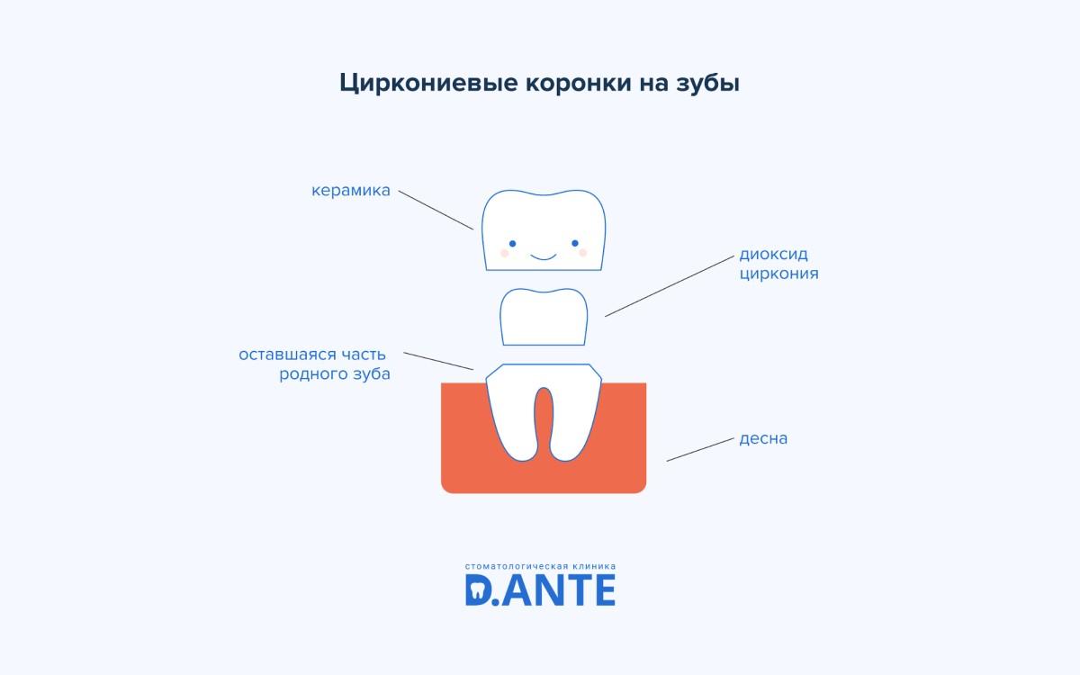 Коронки на зубы: показания, виды, стоимость