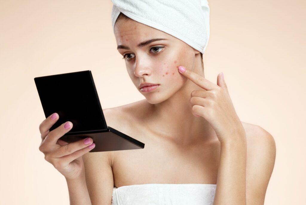 Как гормоны влияют на состояние кожи и почему на лице появляются прыщи?