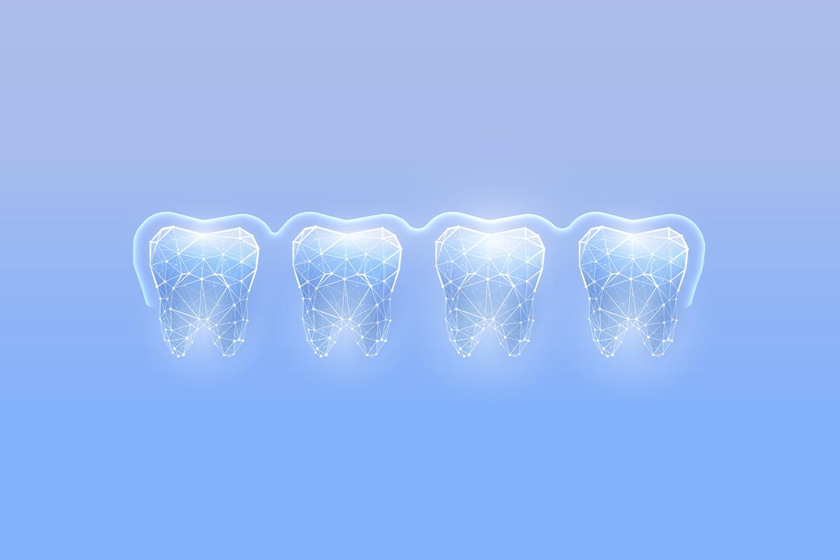 Цифровое протезирование зубов: когда стоматология становится «диджитал»