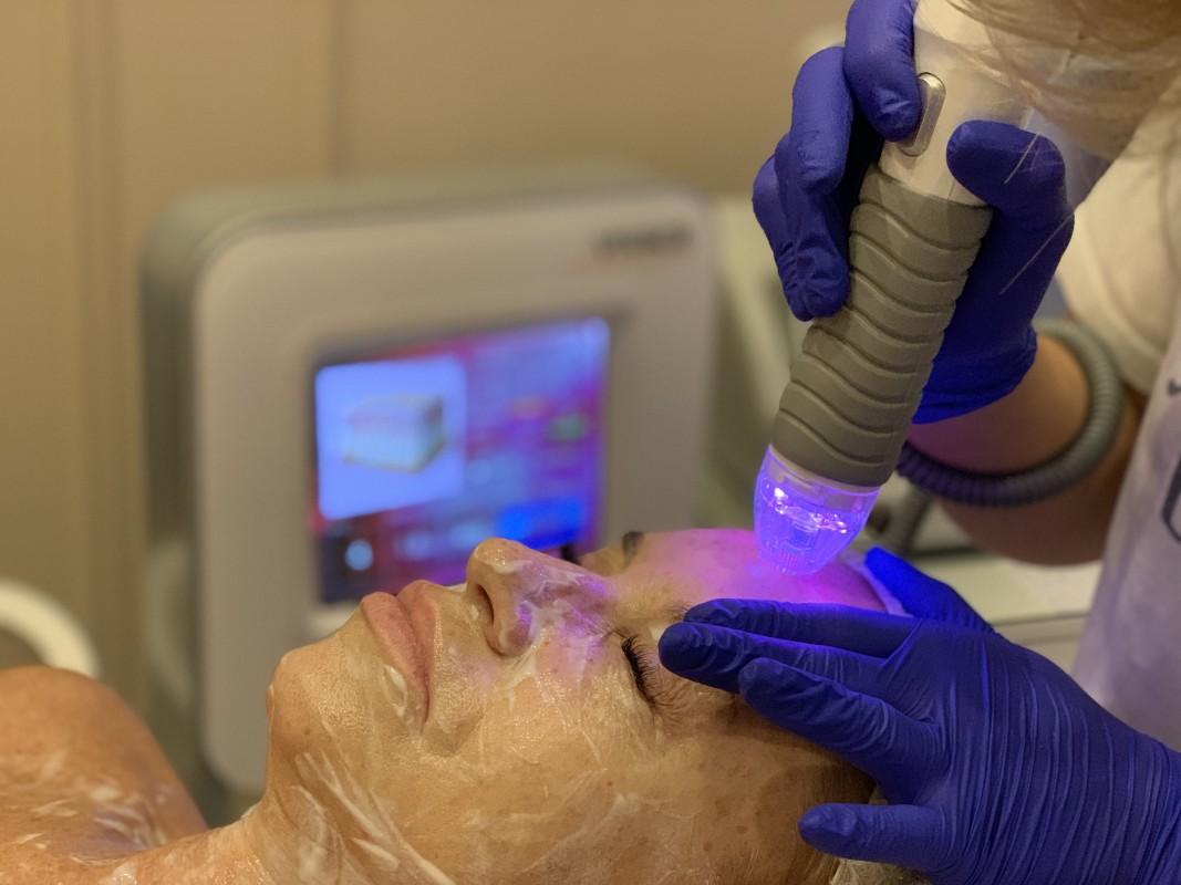 Wow Fresh Vivace: что это за процедура для лица и кому нужна