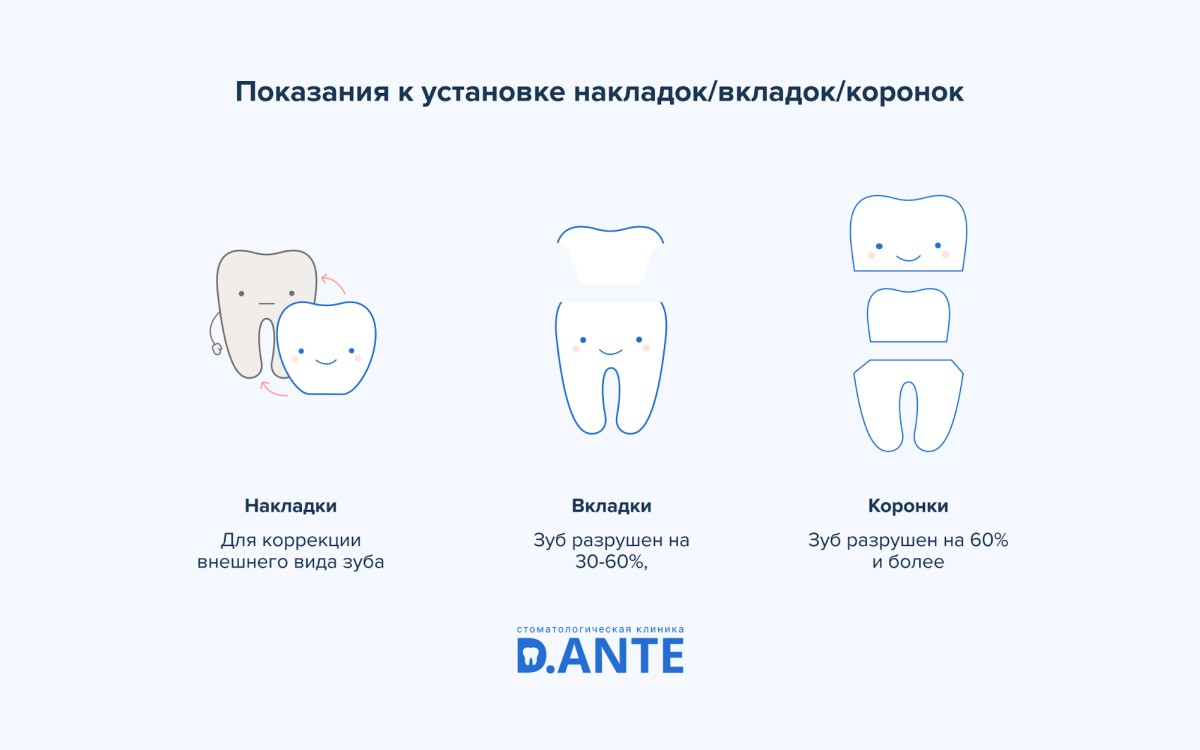 Накладки на зубы или вкладки в зубы?