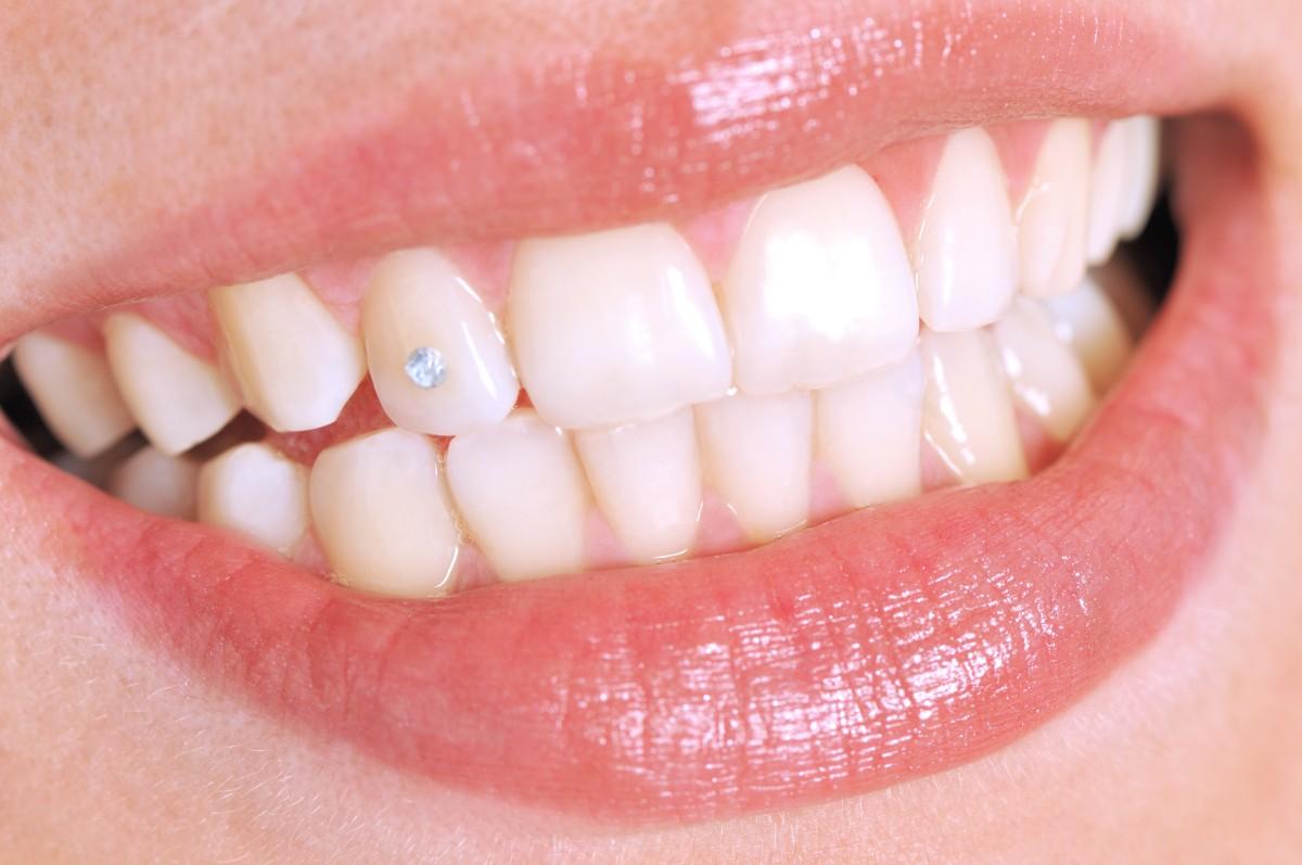 Скайсы на зубах