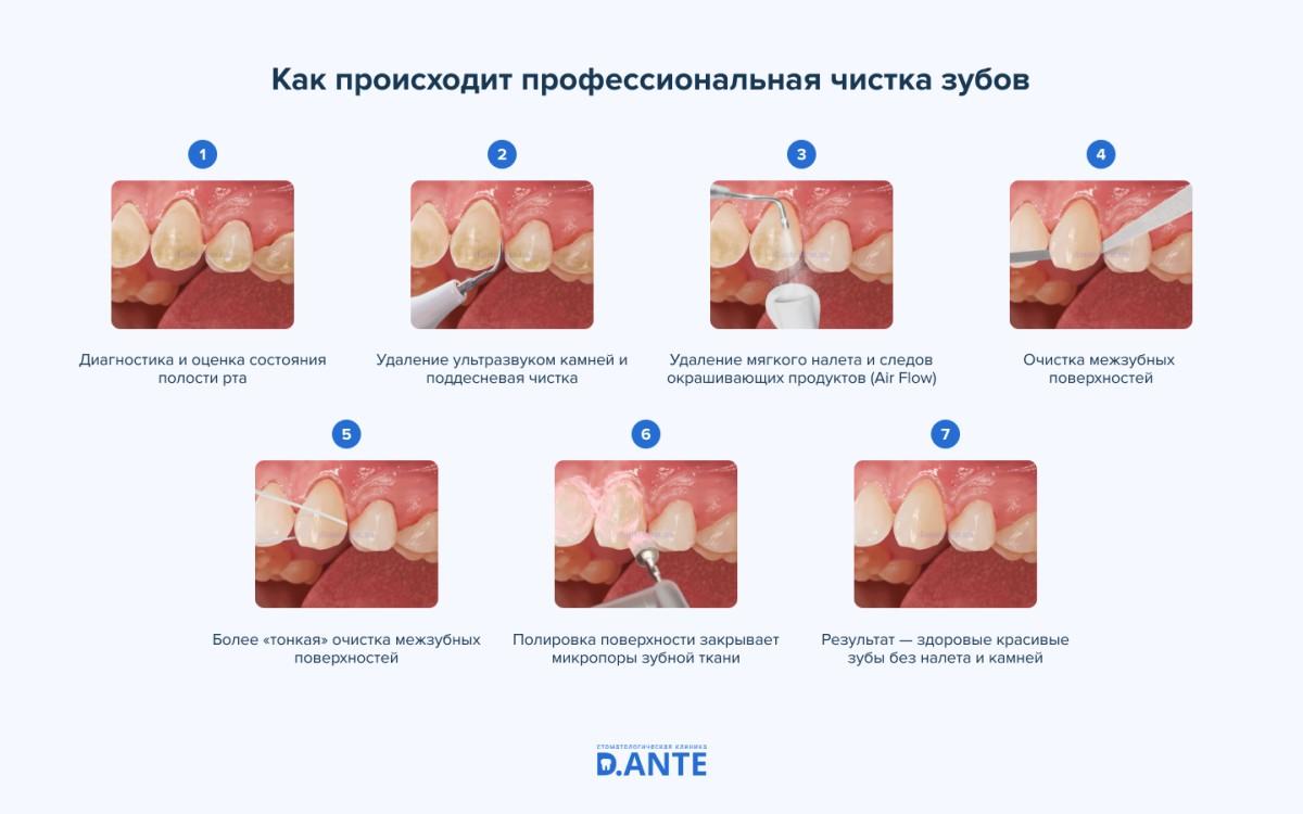 Как происходит профессиональная чистка зубов