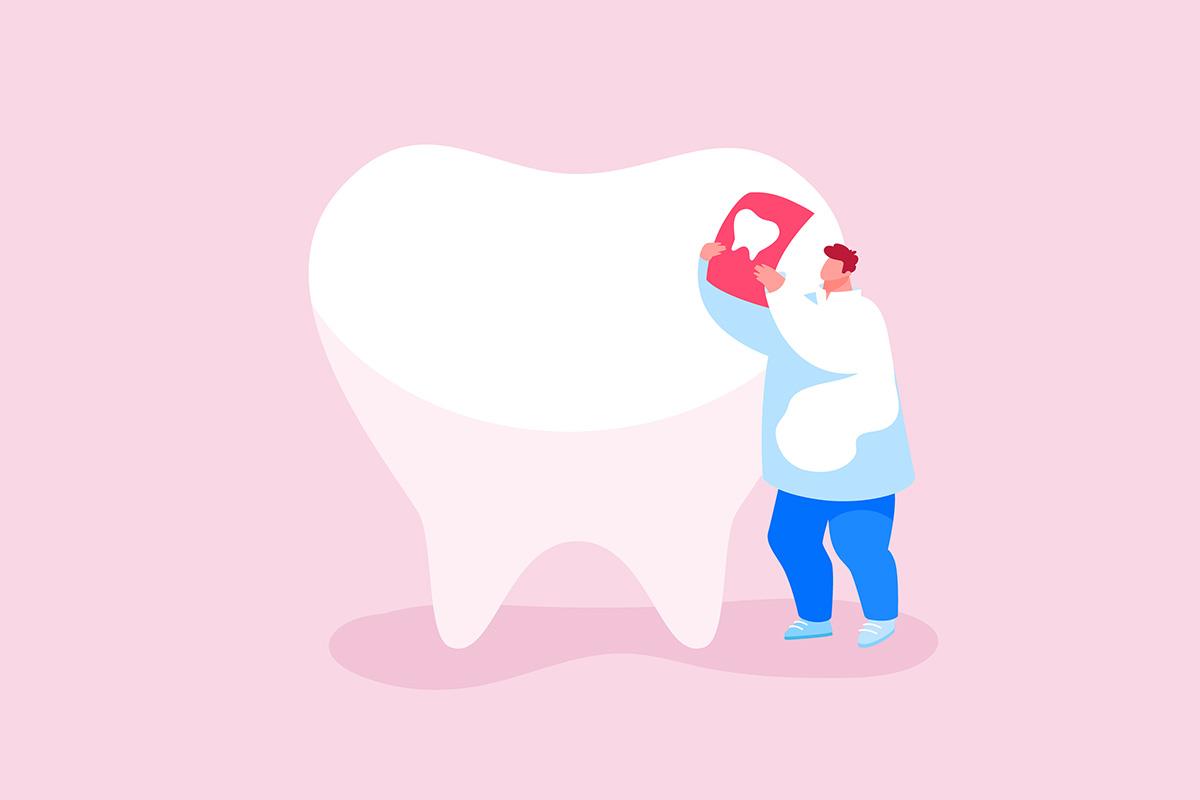 Рентген в стоматологии: показания, виды и особенности диагностики