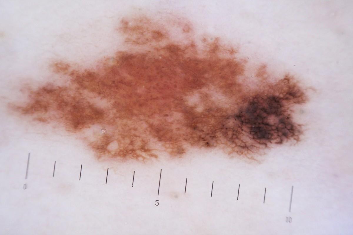 меланома стадии