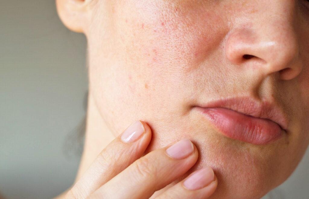 Обезвоженная кожа лица: как справиться с проблемой и не допускать ее впредь