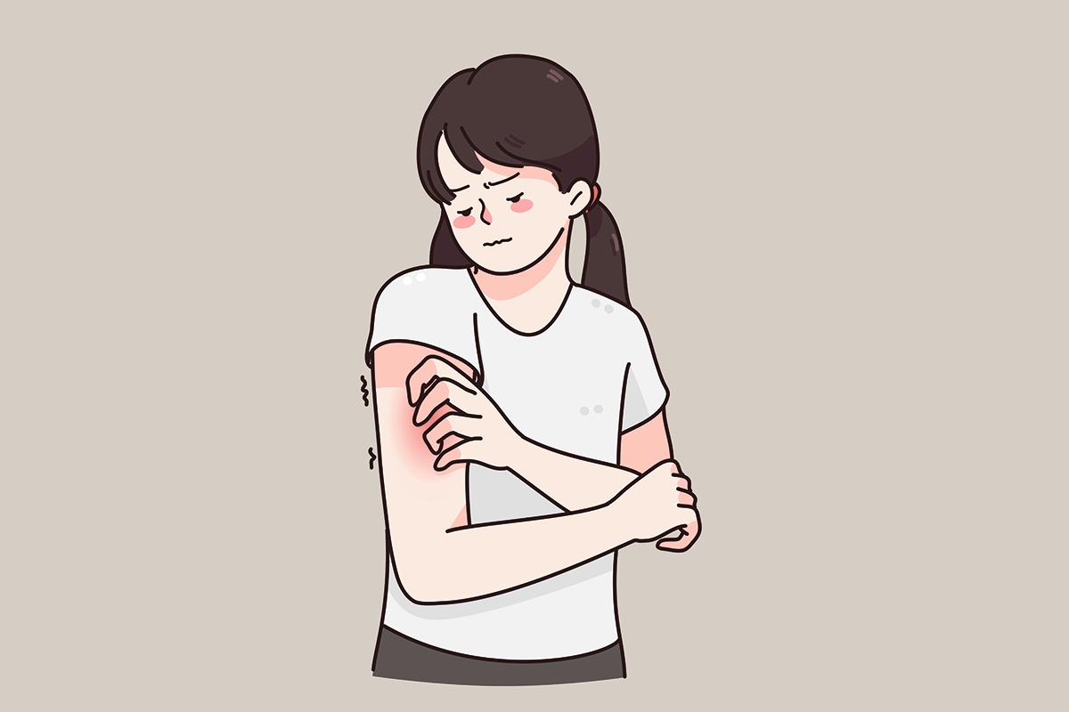 Контактний дерматит