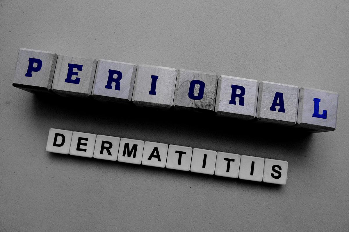Періоральний дерматит: що це таке і чому виникає